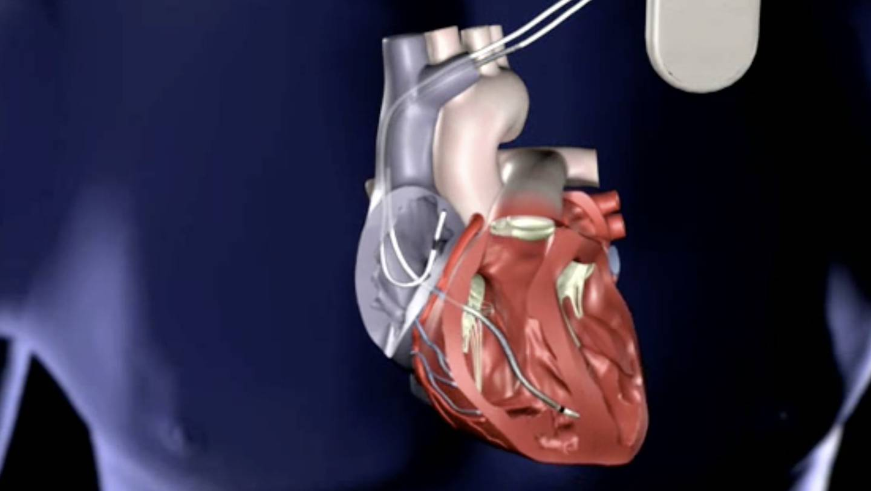 La muerte súbita cardíaca puede ser prevenible, acude a tu médico